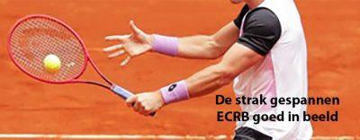 epicondylitis, de ECRB goed te zien