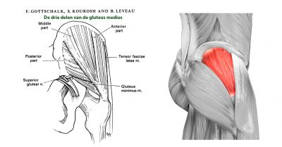 gluteus tendopathie
